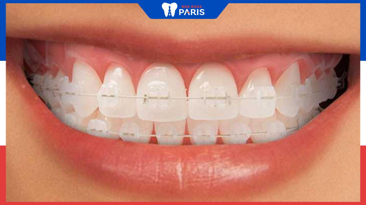 Niềng răng hô bằng mắc cài sứ có hiệu quả không, ưu điểm ra sao?