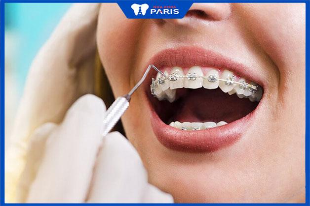 Niềng răng thẩm mỹ hoàn toàn không phải phẫu thuật thẩm mỹ