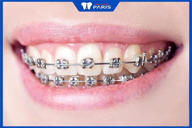 Lý do niềng răng kim loại được sử dụng rộng rãi