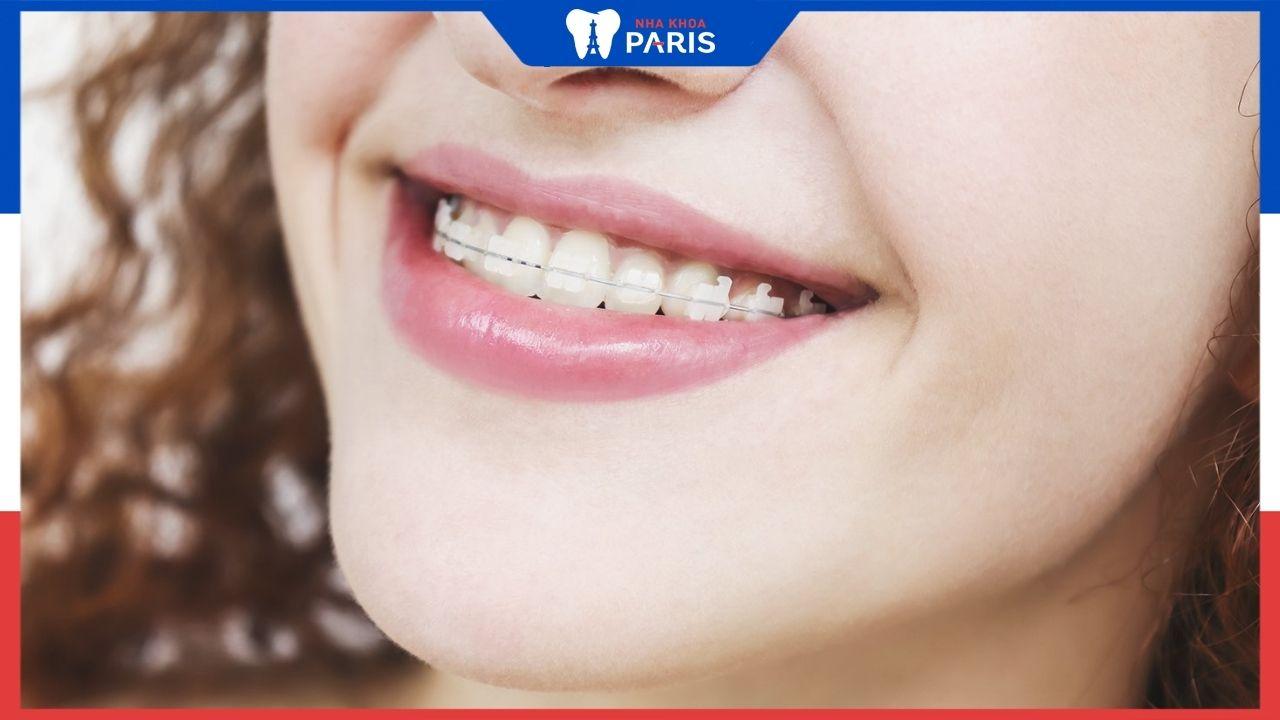 Niềng răng mắc cài bằng sứ có những ưu điểm gì, lựa chọn như thế nào?