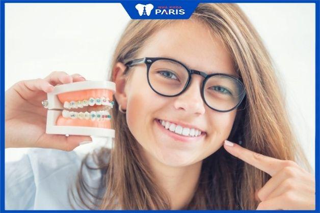 Niềng răng mắc cài sứ sử dụng chất liệu an toàn