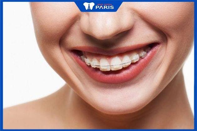Niềng răng mắc cài sứ cho hiệu quả cao