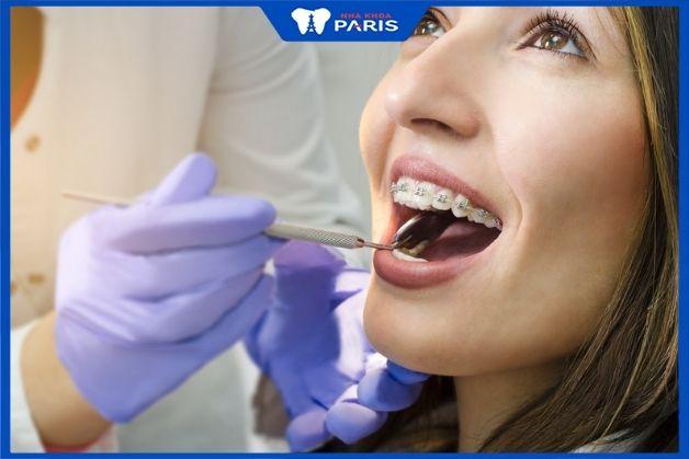 Khay niềng răng Invisalign trong suốt và lưu ý quan trọng khi sử dụng