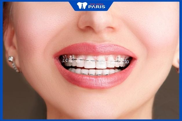 Niềng răng mắc cài sứ mang lại hiệu quả chỉnh nha rất cao