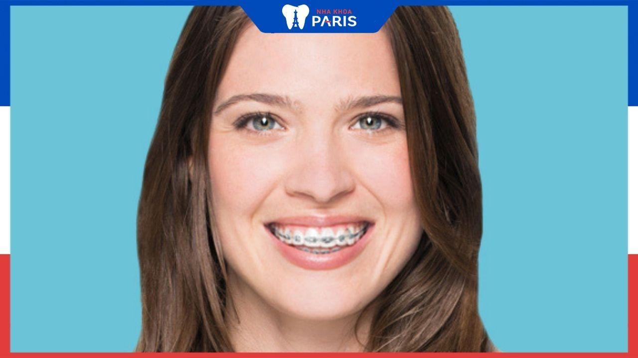 Có nên sử dụng niềng răng mắc cài sứ tự buộc không?