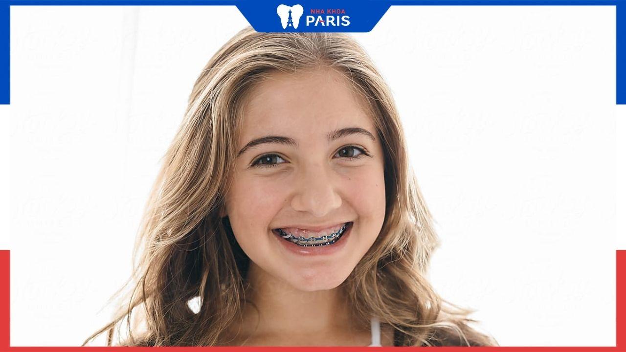Tìm hiểu về niềng răng mắc cài sứ tự khoá? Ưu tiên cho trường hợp nào