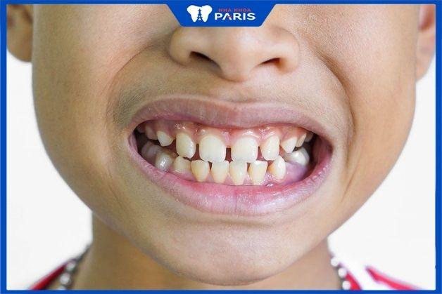Răng thưa đến từ thói quen xấu hay cách chăm sóc răng miệng