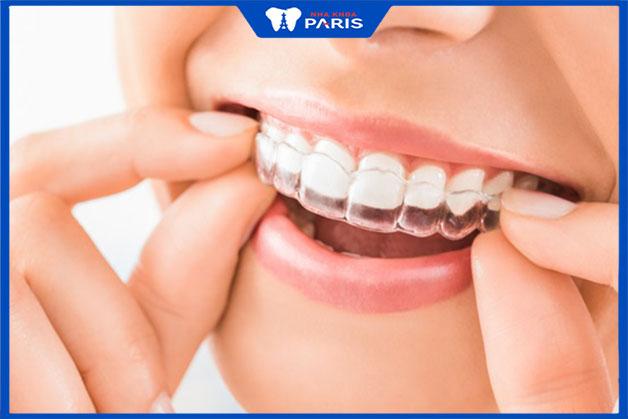Khay niềng răng trong suốt invisalign không gây đau