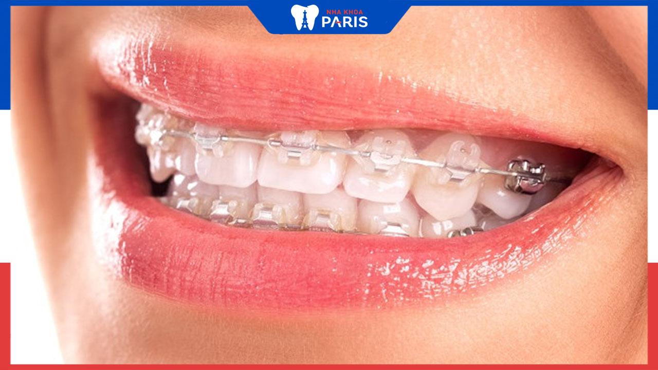 Niềng răng mắc cài sứ là gì? Có nên niềng răng mắc cài sứ không?