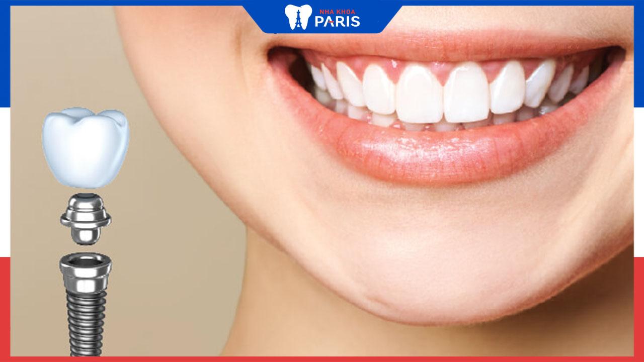 Phẫu thuật cấy ghép Implant – Giải pháp hữu hiệu cho người mất răng