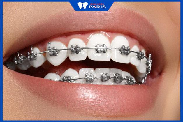 Phương pháp niềng răng mắc cài kim loại