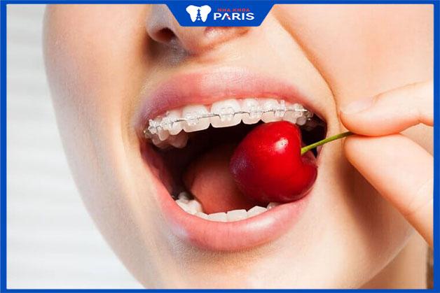 Không dùng răng để trực tiếp cắn thức ăn cứng khi niềng răng
