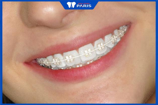 Thời gian niềng răng hô bằng mắc cài sứ từ 1- 3 năm
