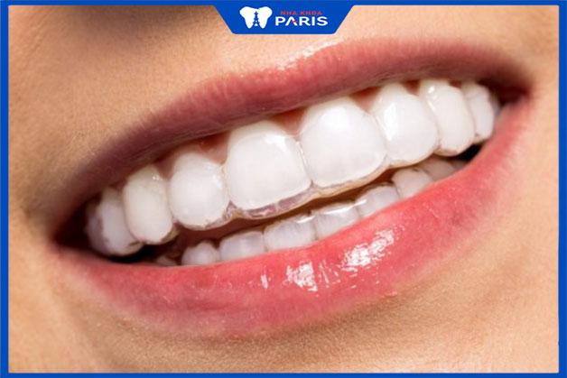 Khay niềng răng invisalign trong suốt có lâu hơn niềng răng thường không